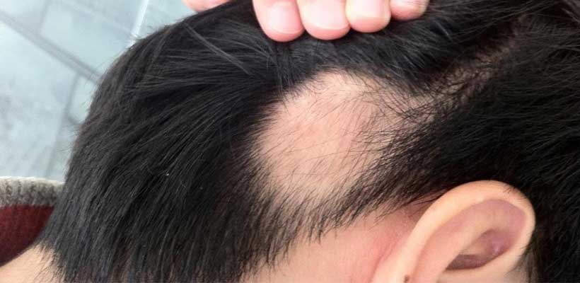 Hair-loss-is-gone